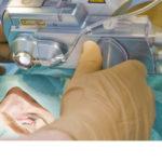 refraktive chirurgie