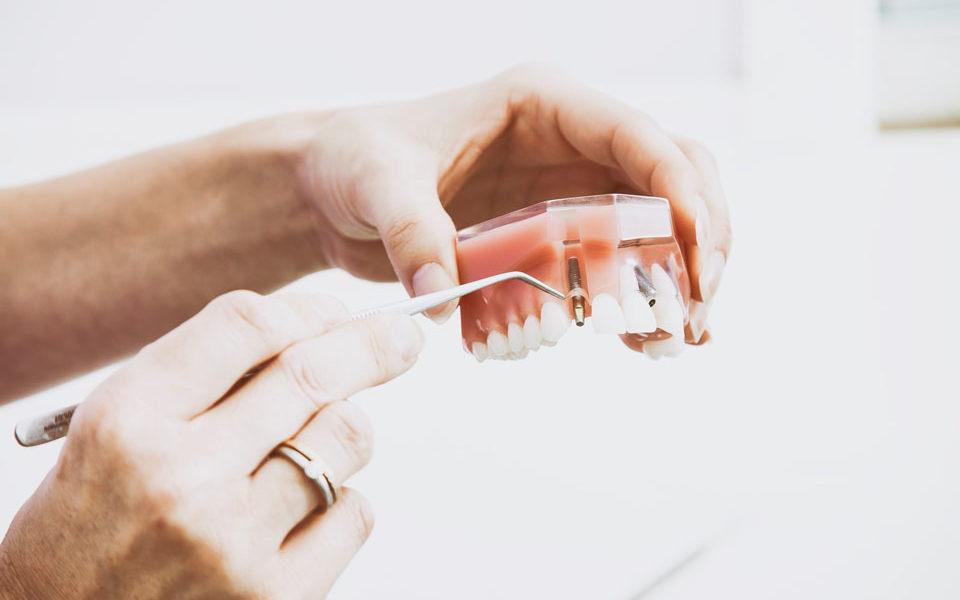 Mund-, Kiefer- und Gesichtschirurgie - Praxis Dr. Heinrich Berlin